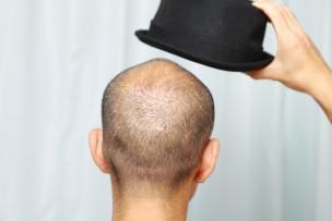 薄毛の男性画像