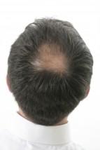 Cavietie,chute des cheveux